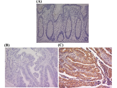 PK-R2 protein expression in healthy human colorectal mucosa and human primary colorectal cancer by immunohistochemical staining with anti-PK-R2 mAb