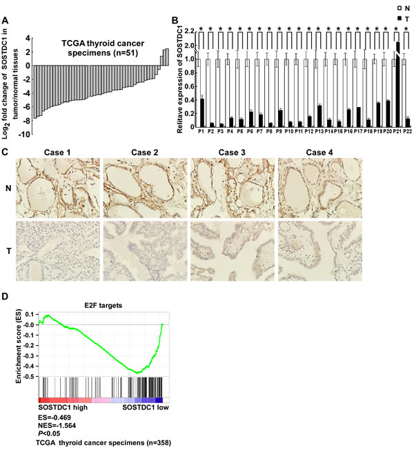 SOSTDC1 is clinically associated with the Rb-E2F pathway.