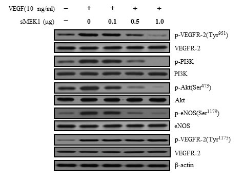 sMEK1 suppressed the phosphorylated proteins of the VEGFR-2/PI3K/eNOS signaling cascade.