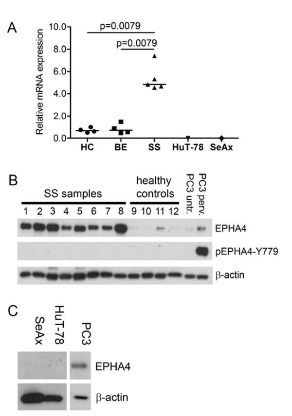 EPHA4 and phosphorylated EPHA4 expression in SS.