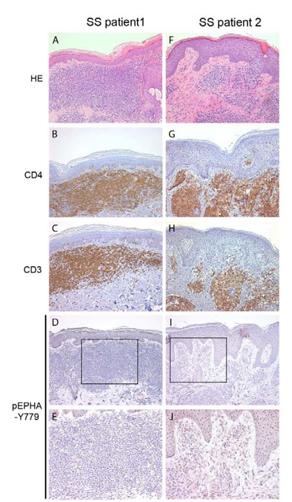 Phosphorylated EPHA4 expression in skin biopsies of SS patients.
