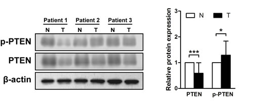 Phosphatase and tensin homolog is phosphorylated in gastric cancer tissues.