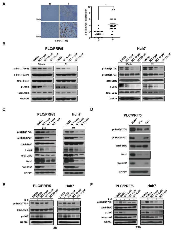 Icaritin inhibits the Stat3 signaling pathway in HCC cells.