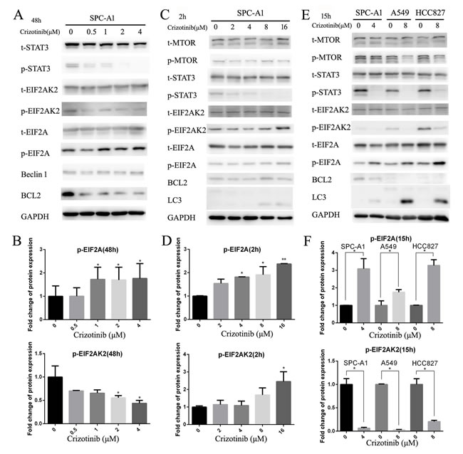 Inhibition of cytoplasmic and nuclear STAT3 pathways both participated in crizotinib-induced autophagy.