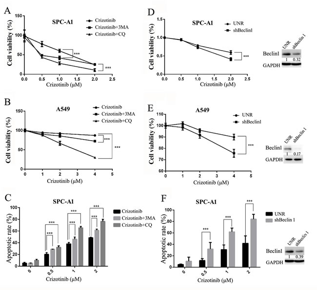 Inhibition of autophagy suppresses cell survival and promotes crizotinib-induced apoptosis in vitro.