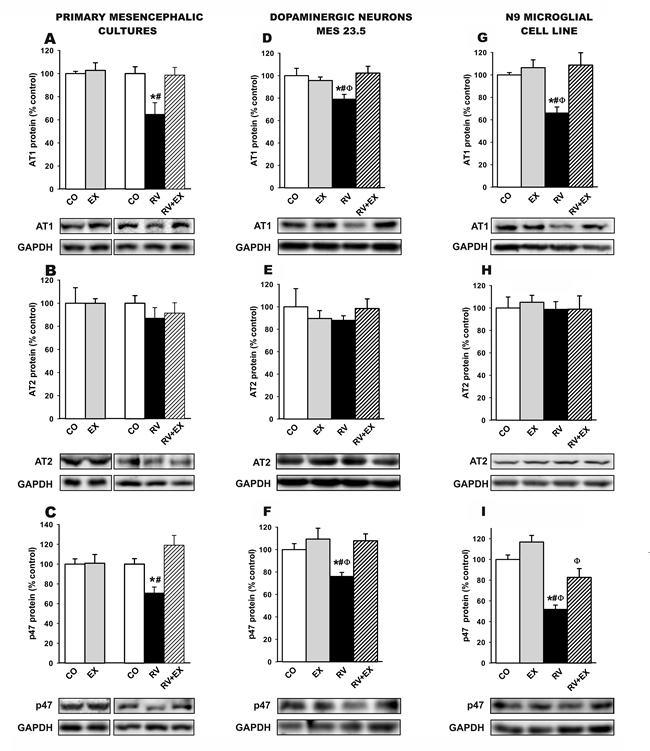 Western blot analysis of changes induced by treatment with resveratrol (RV) and resveratrol plus the SIRT1 specific inhibitor EX527 (RV+EX)