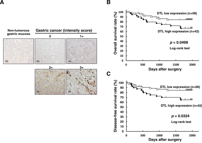 Immunohistochemical-staining analyses and postoperative overall survival curve according to the expression of DTL.