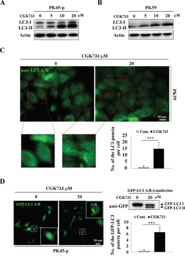 CGK733 induces LC3 II formation in Gemcitabine-resistant pancreatic cancer cells.