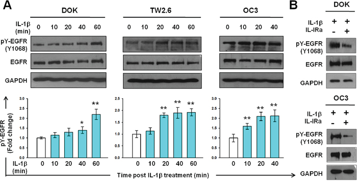 IL-1β induces EGFR tyrosine phosphorylation in DOK and OSCC cell lines.