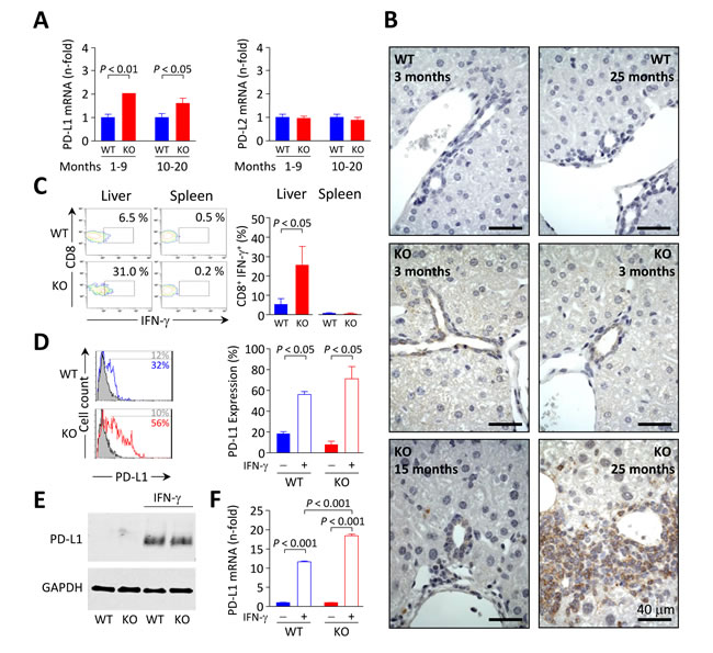 PD-L1 expression in mouse biliary epithelial cells is influenced by IFN-γ.
