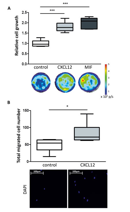 Effect of recombinant CXCL12 and MIF on breast cancer cell growth and migration.