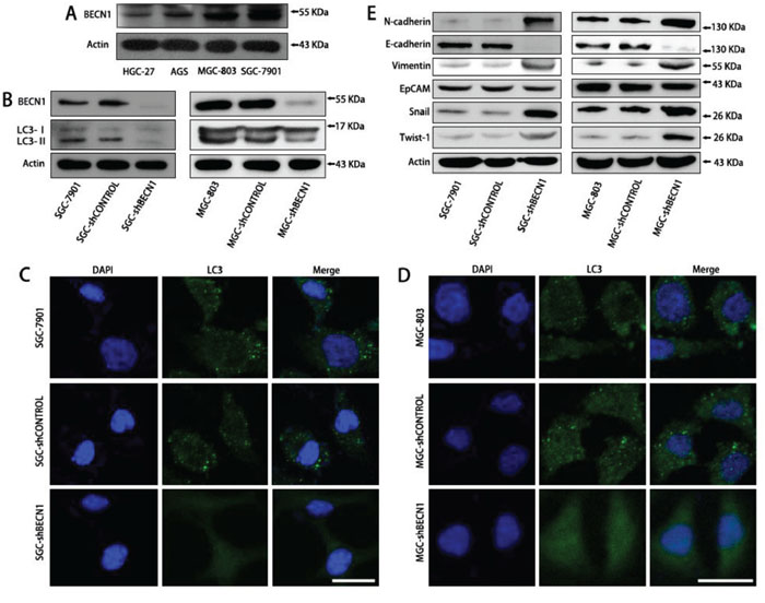 Autophagy inhibition promotes EMT of SGC-7901 and MGC-803 cells.