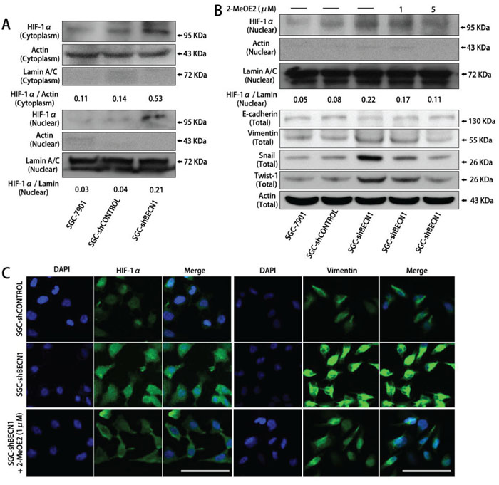 The EMT induced by autophagy inhibition is dependent on HIF-1α activation in gastric cancer cells.