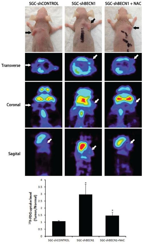 Antioxidant NAC restrains autophagy inhibition induced glycolysis in vivo.