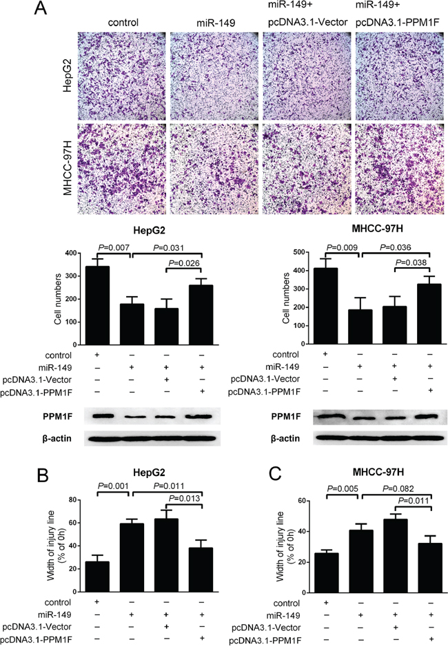 PPM1F rescued the effect of miR-149 on the invasion and migration of HCC cells.