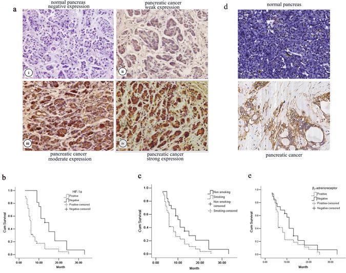 The effect of HIF-1α and β2-AR expression and smoking on pancreatic cancers.