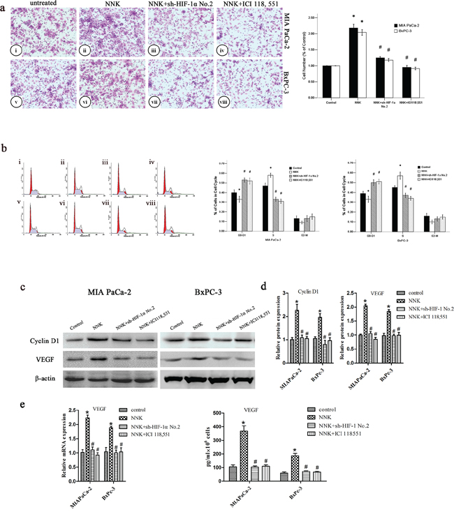 NNK promotes pancreatic cancer proliferation and invasion in vitro through β2-AR signaling.