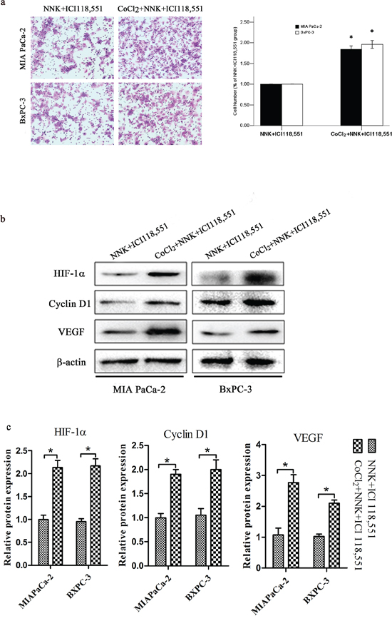 HIF-1α overexpression abolished β2-antagonist-induced effects on pancreatic cancer. Both BxPC-3 and MIAPaCa-2 cells were treated with 150 μM CoCl2 to induce HIF-1α overexpression.