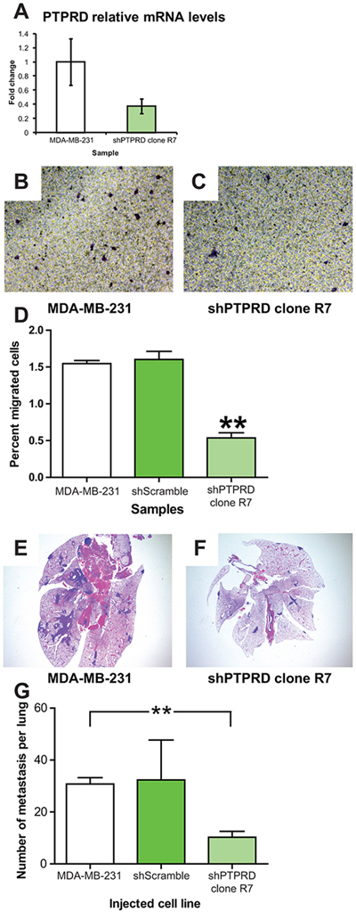 PTPRD knockdown in human breast cancer decreases migration and lung colonization.