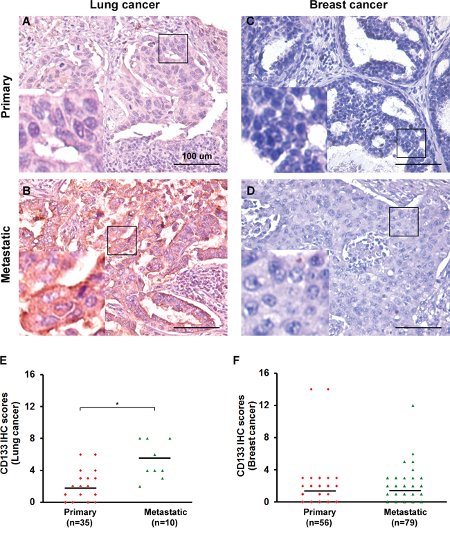 CD133 is clinically significant in lung cancer but not breast cancer patients.
