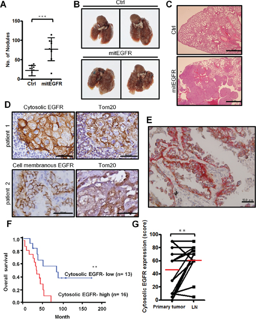 In vivo metastasis model of mitEGFR and the clinical correlations of cytosolic EGFR expression in NSCLC.