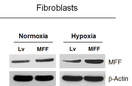 Generation of fibroblasts over-expressing MFF.