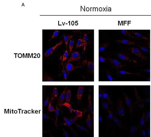 Fibroblasts over-expressing MFF show mitochondrial dysfunction.