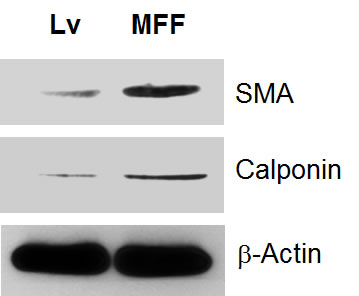 Fibroblasts over-expressing MFF show myofibroblastic features.