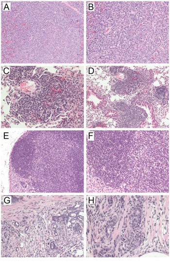 Representative hematoxylin & eosin-stained sections of tumors developed in A-B) Mbd4−/− Mlh1−/−; C-D) Mbd4−/− Mlh1+/+ ; E-F) Mbd4+/+ Mlh1−/−; and G-H) Mbd4+/− Mlh1−/− mice.