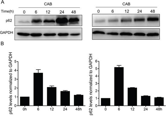 CAB blocks autophagic flux.