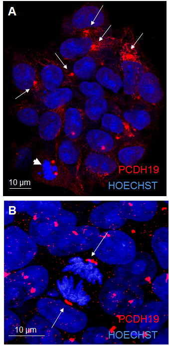 PCDH19 localization in iPSC colony.