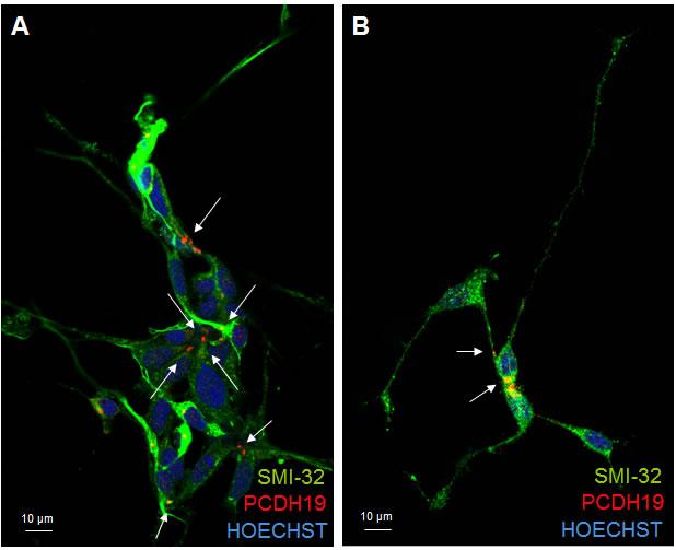 PCDH19 localization in mature neurons.