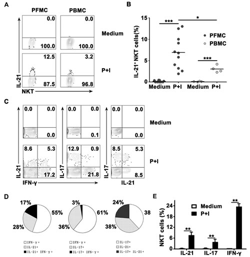 The frequency of IL-21- expressing TCRvβ11