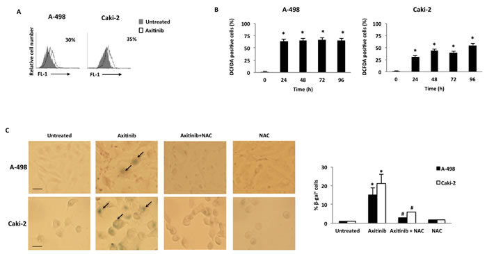 Axitinib induces cellular senescence in RCC cells in a ROS-dependent manner.