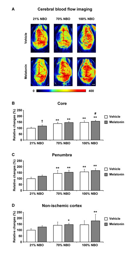 Effects of normobaric oxygen and melatonin on post-ischemic regional cerebral blood flow.