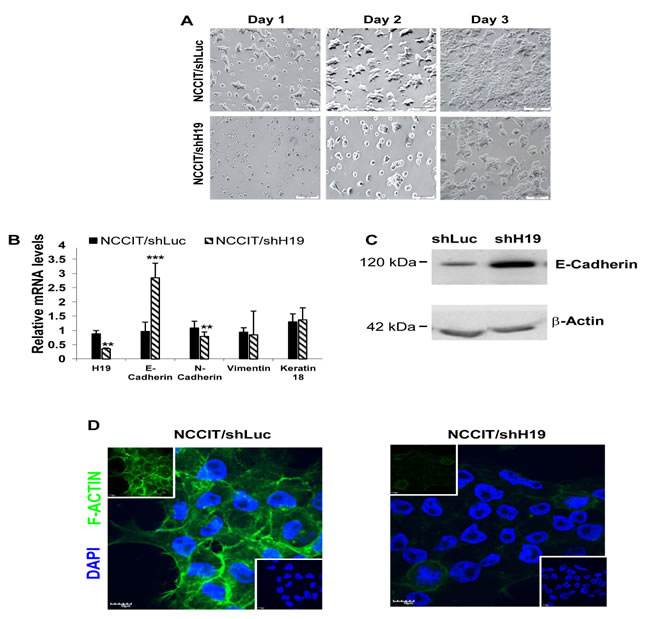H19 knockdown decreases hEC cell-matrix attachment and decreases hEC cell-cell interactions.