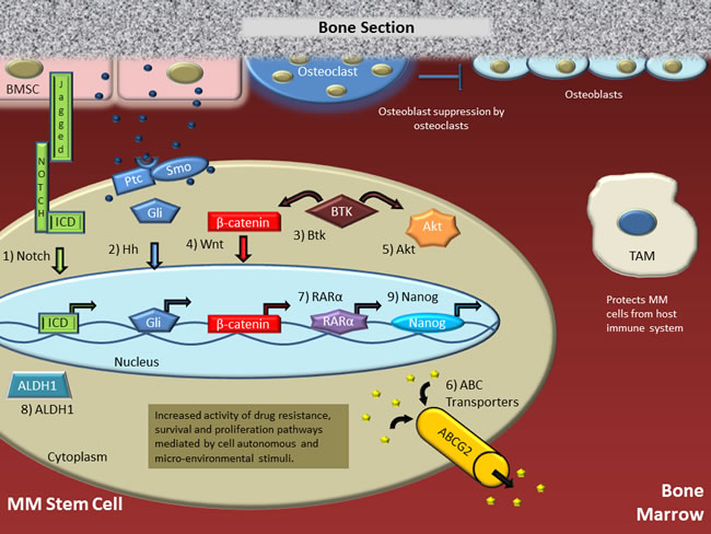 Putative multiple myeloma stem cell (MMSC) in the bone marrow microenvironment.