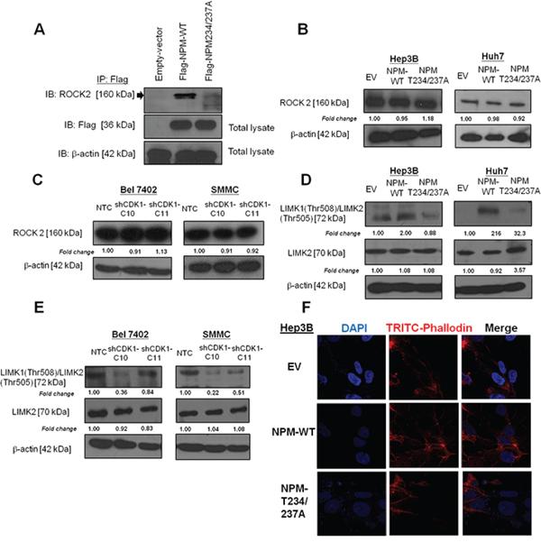 p-NPM-Thr234/237 regulated metastasis through Rho-ROCK-LIM kinase pathway.
