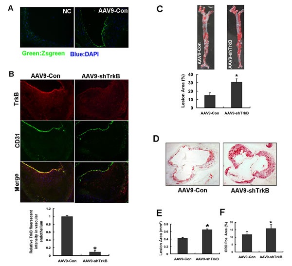 Endothelial TrkB confers atheroprotection in apoE-/- mice.