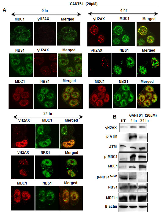 Expression of DNA damage-induced mediator proteins at 4 hr and 24 hr in HT29 cells following inhibition of GLI1/GLI2 by GANT61 (20 µM).