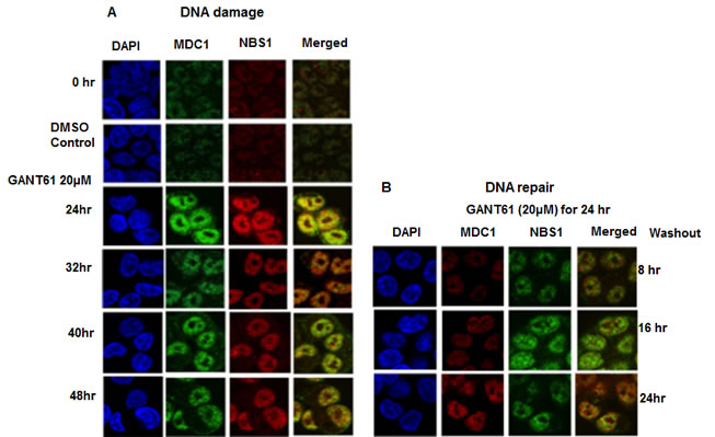 Localization and co-localization of MDC1 and NBS1 nuclear foci during DNA damage or during DNA repair following GLI1/GLI2 inhibition.
