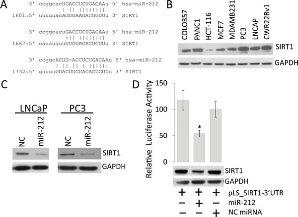 miR-212 inhibits the expression of SIRT1 in prostate cancer Cells.