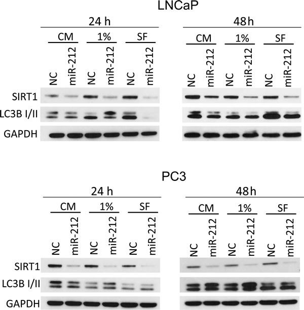 miR-212 inhibits autophagy induced by serum starvation.