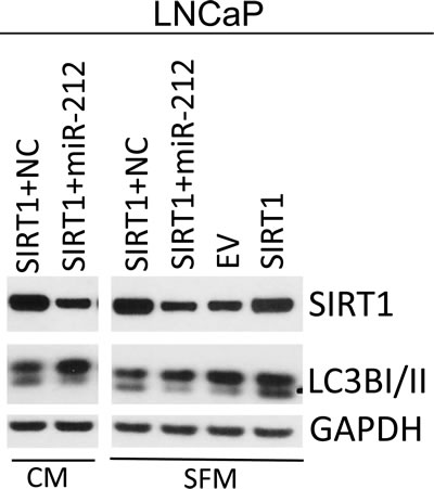 miR-212 inhibits SIRT1 induced autophagy.