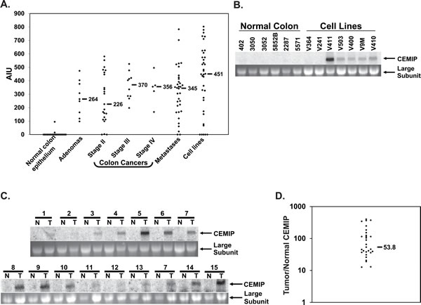 CEMIP mRNA expression in normal colon epithelium and colon cancer samples.
