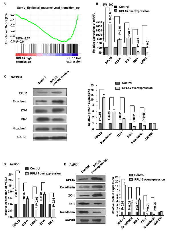 Overexpression of RPL15 reduces epithelial-mesenchymal transition (EMT) in pancreatic cancer cell line.