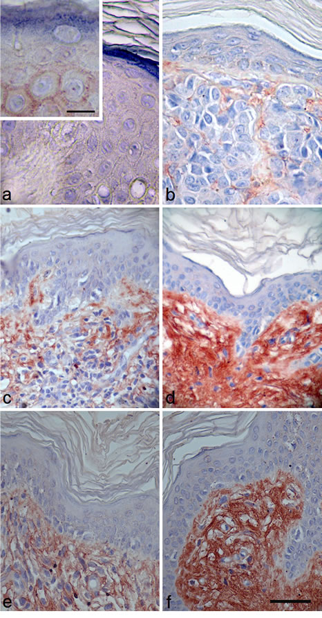 Immunostaining using a specific anti-NECL-5 antibody in a representative fraction of human melanocytic lesions of benign nevi, primary and metastatic melanoma.