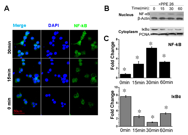 PPE26 affects NF-κB subunits subcellular location.