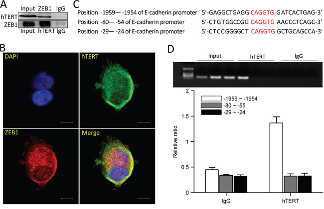 hTERT and ZEB1 form a complex and bind the E-cadherin promoter.