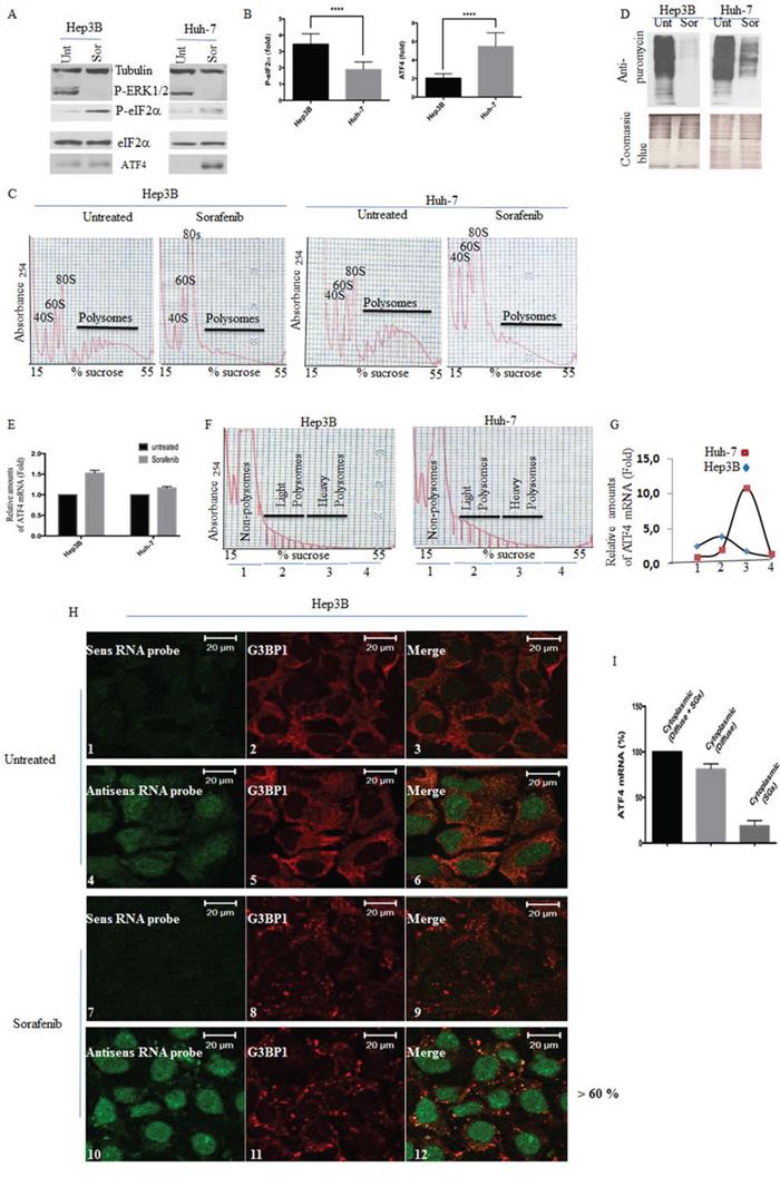 Analysis of eIF2α phosphorylation, ATF4 mRNA expression and localisation, and general translation initiation in sorafenib-treated HCC.
